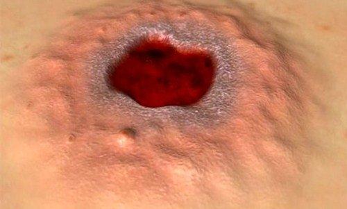 Характерные признаки и способы лечения сифилиса фото