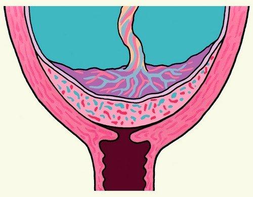 Плацента является органом, обеспечивающим внутриутробное существование плода, нарушения в ее функционировании могут привести к серьезным последствиям