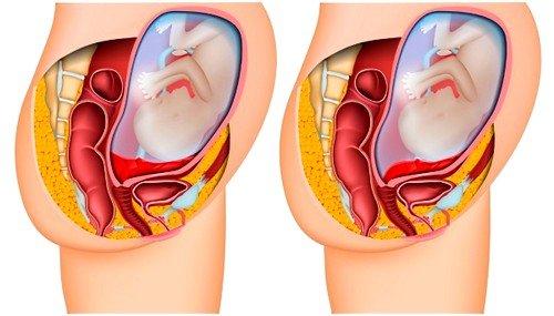 При полном предлежании эмбрионального органа происходит значительное растяжение матки и отслойка плаценты