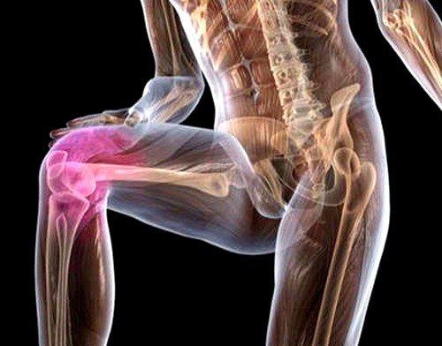 При реактивном артрите возникают боли в мышцах