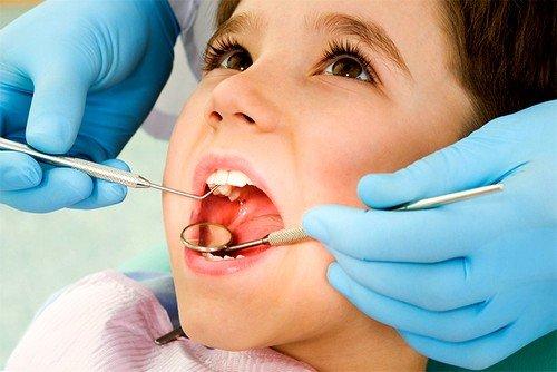 слишком рано начинаются проблемы с зубами – кариес