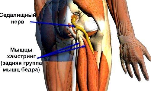 Способы лечения и симптомы при воспалении седалищного нерва фото