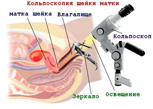 Кольпоскопия шейки является высокоинформативным методом диагностики, в процессе которой оцениваются такие параметры, как цвет ткани, состояние слизистой, сосудистый рисунок, границы обнаруженных образований