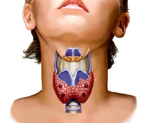 Заболевания щитовидной железы у женщин фото