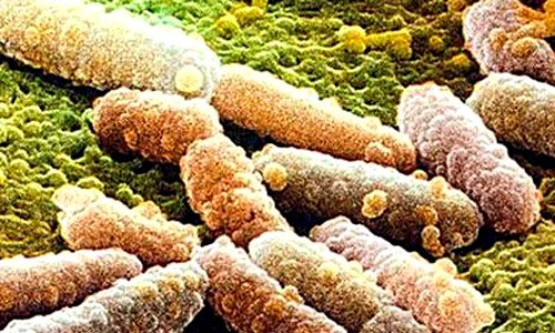 Золотистым стафилококком (Staphylococcus aureus) называется один из видов грамположительных бактерий рода стафилококков, имеющих шаровидную форму