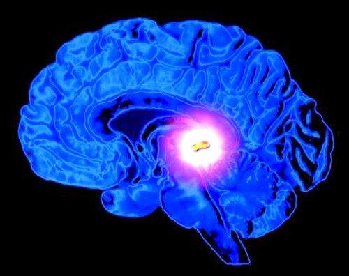 Киста в головном мозге у взрослого фото