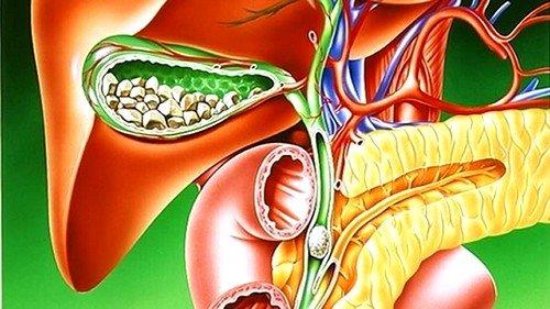 Чаще всего при желчекаменной болезни можно встретить камни смешанного типа: холестериновые, желчной кислоты, белковые, на основе соли, кальциевые