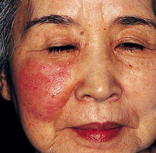 Если речь идет о рожистом воспалении лица, то тут основная зона поражения находится в области носа, щек, уголков рта и слухового прохода