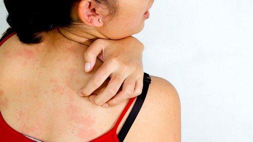Характерным симптомом нейродермита является кожный зуд