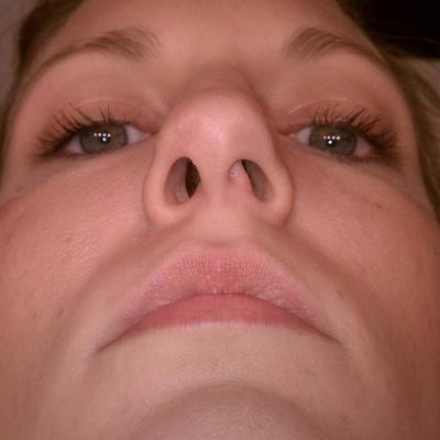 С-образное искривление носовой перегородки
