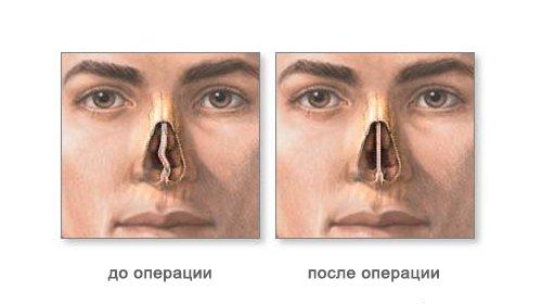 Признаки обызвествления перикарда на рентгенограмме
