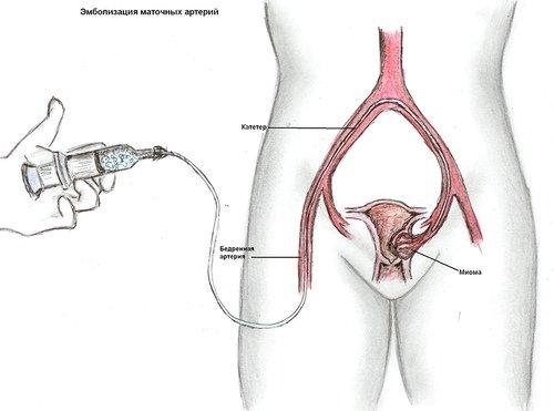 Краткая схема операции по эмболизации маточных артерий
