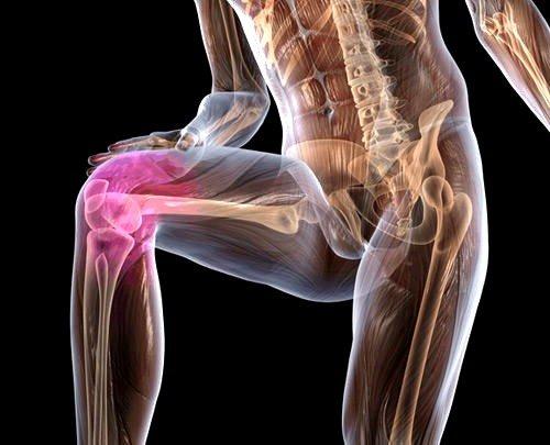 Болезнь Кенига коленного сустава фото