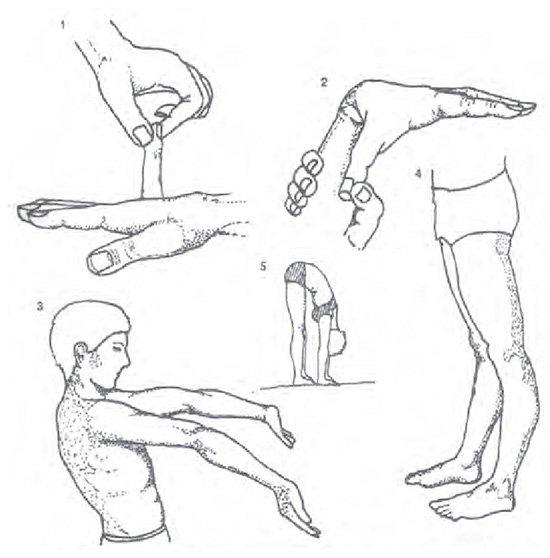 Симптомы и лечение дисплазии соединительной ткани фото