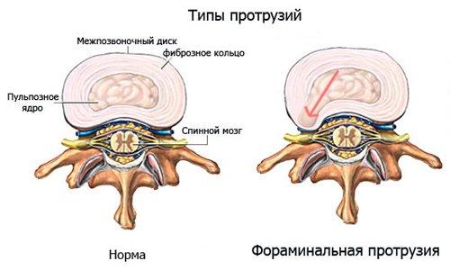 На рисунке показаны типы протрузий позвоночника