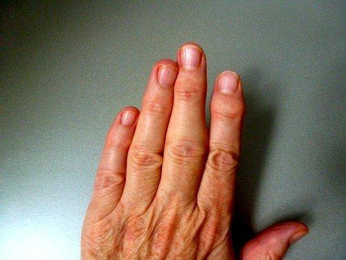 Ревматоидный артрит пальцев рук, первые симптомы фото