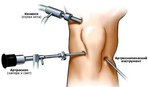 Артроскопия коленного сустава по своей сути является эндоскопическим исследованием, в ходе которого врач-хирург может увидеть все  составляющие сустава