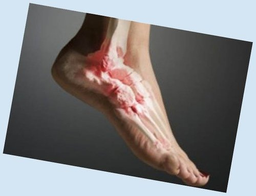 Фото 1. Артроз стопы ног