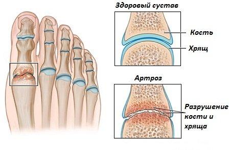 Артроз на большом пальце стопы