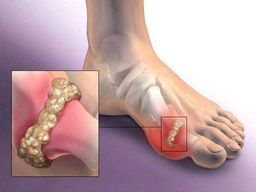 Важно лечение артроза большого пальца ноги, так как он координирует движение