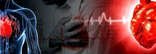 Ишемическая болезнь и стентирование сосудов сердца фото