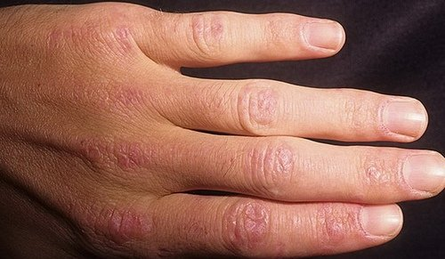 Пример дерматомиозита