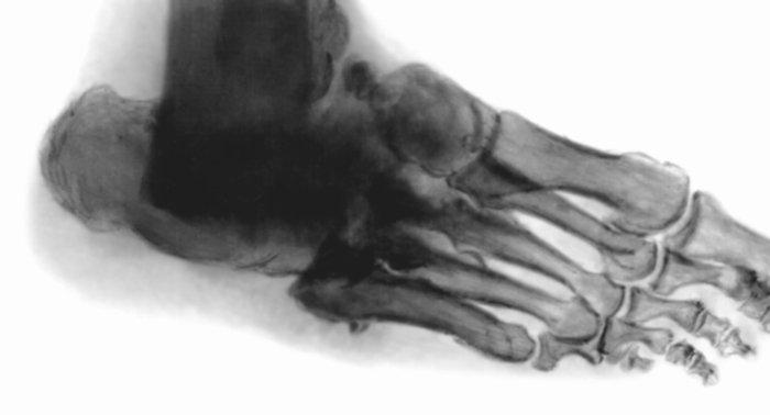 На рентгенограмме стопы больного с синдромом диабетической стопы видно частичное обызвествление стенок сосудов мягких тканей