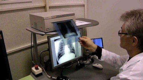 на выполнение флюорографии тратится в 3 раза меньше времени, чем на рентгенограмму