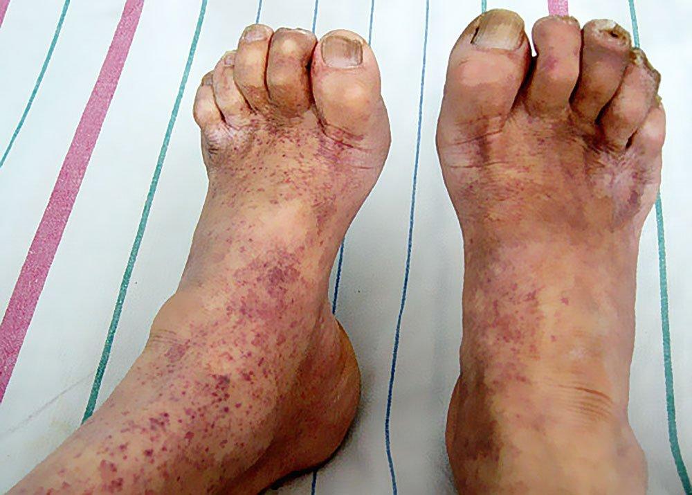 Мышечная дистрофия Дюшена на ногах