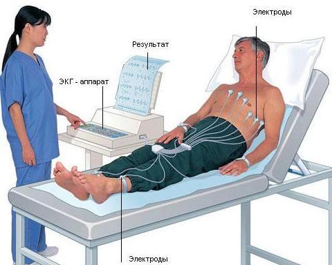 Диагностика сердечно-сосудистых заболеваний, ЭКГ