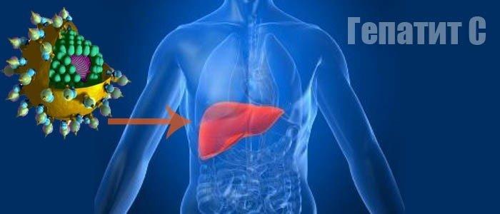 Инфицирование вирусом гепатита С
