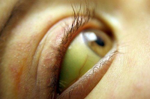 пожелтение глаза