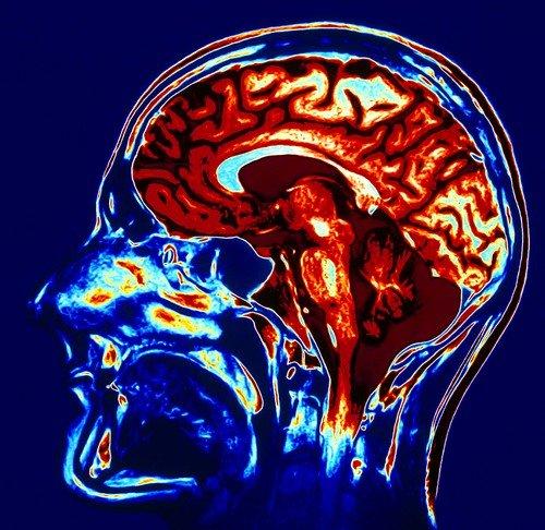 Статистика показывает, что именно МРТ на данный момент является наиболее качественным методом диагностики для исследования тканей головного мозга