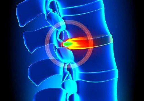 Третья стадия (межпозвоночная грыжа) характеризуется окончательным разрушением фиброзного кольца с выходом наружу студенистого ядра