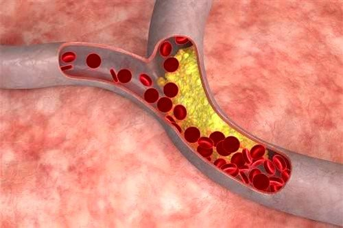 Длительное применение Мексидола снижает уровень холестерина в крови человека