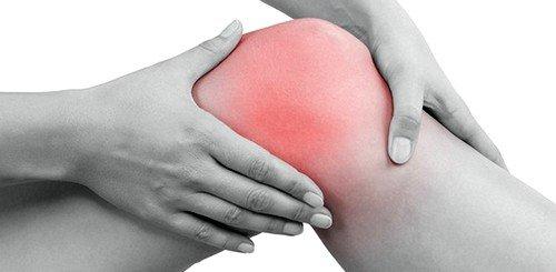 Болезнь развивается из-за длительного давления сухожилия подколенной чашечки на коленный сустав