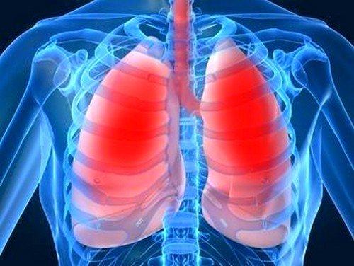 Отек легких происходит по причине воздействия внешнего фактора, влияющего на скопление серозной жидкости в альвеолах, что приводит к нарушению обмена углекислого газа и кислорода