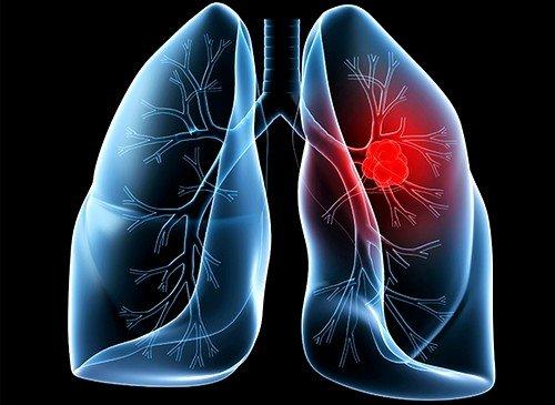 МРТ исследование легких и бронхов используется при необходимости выявления очагов злокачественных процессов, диагностики состояния лимфатических узлов, а также плеврального пространства