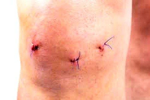 Артроскопическая операция на коленном суставе является оперативным хирургическим вмешательством
