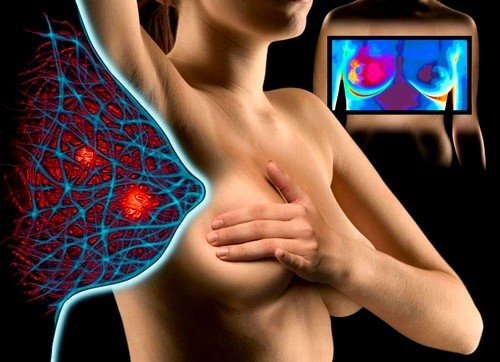 Маммографию назначают здоровым женщинам как профилактическое исследование и женщинам с заболеванием молочных желез для своевременного обнаружения патологических процессов в груди