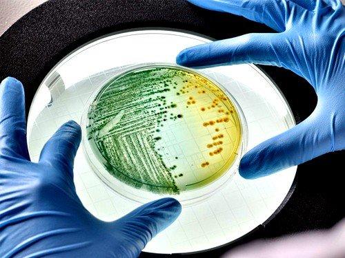 Возможен посев в анаэростатах, то есть без кислорода, чтобы исследовать кал на наличие анаэробных форм микробов