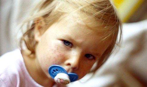 Симптоматика кори у детей