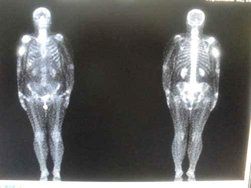 Сцинтиграфия костей, является одним из методов визуализации костной ткани