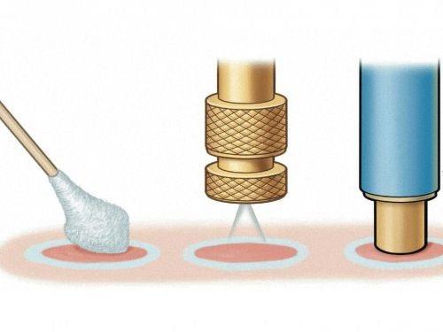 Криодеструкция – удаление образования путем воздействия на него жидким азотом