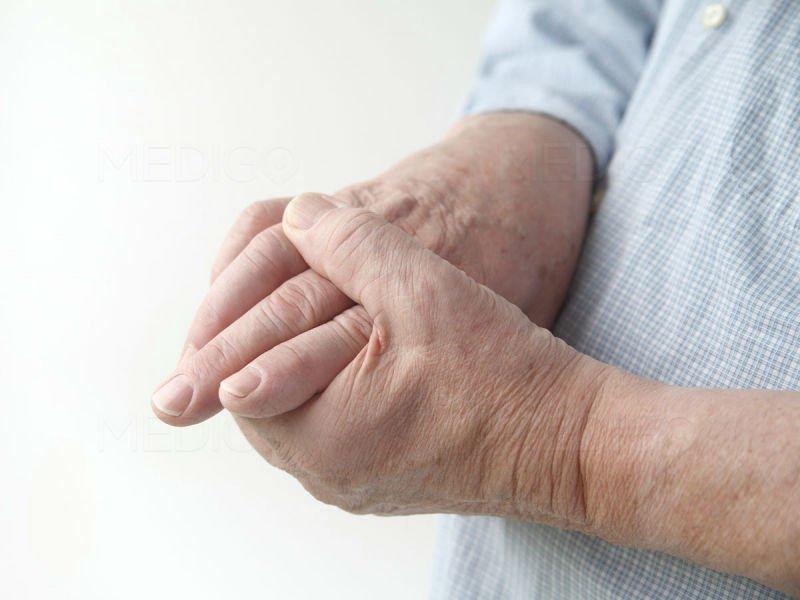 Биологическое лечение ревматоидного артрита: методы лечения и препараты фото