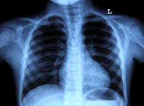 Исследование легких и бронхов на магнитно-резонансном томографе успешно заменяет ряд других процедур, более сложных и труднопереносимых