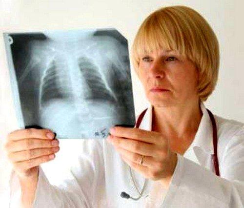 Основная ошибка, которую может допустить врач, - это ошибочно принять данный симптом за острую форму бронхита