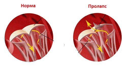 Симптомы и лечение пролапса митрального клапана фото