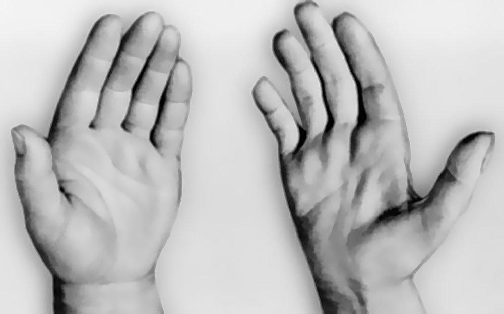 Прогрессирующая мышечная дистрофия Дюшена