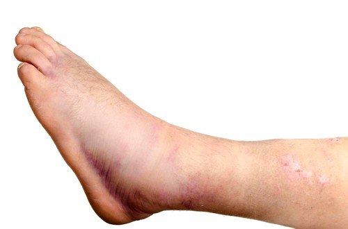 Почему отекают ноги в щиколотках у женщин фото